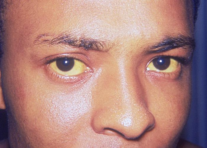 Man with yellow eyes due to jaundice from hepatitis