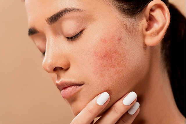 Woman who has a malar rash (butterfly rash) due to lupus with lupus disease activity